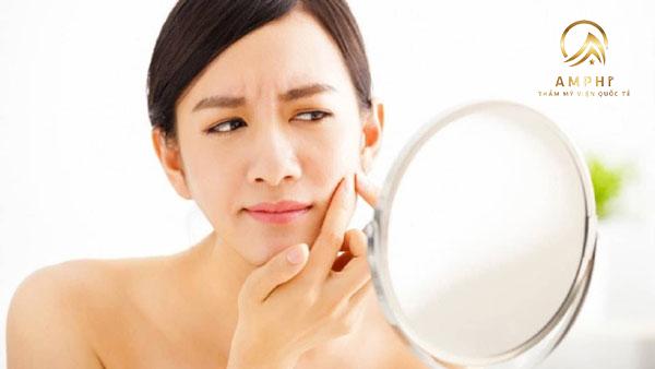 Trị mụn cho da nhạy cảm an toàn và hiệu quả nhất