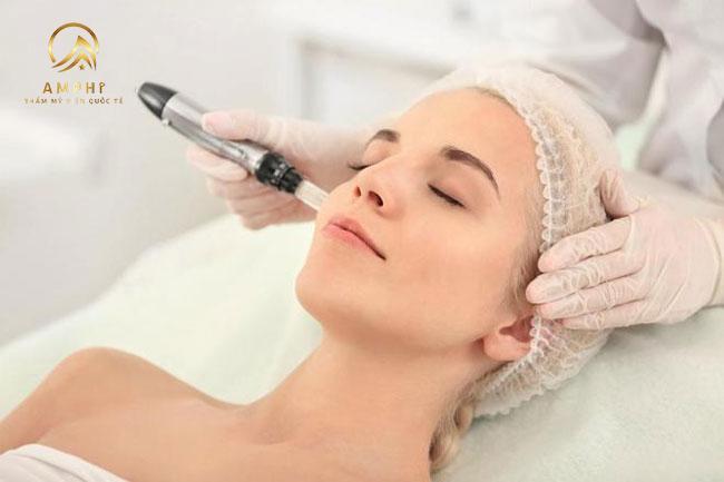 Khám phá công nghệ lăn kim trị sẹo, hiệu quả điều trị sẹo lên đến hơn 90%